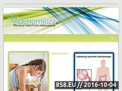 Miniaturka domeny adenomioza.pl