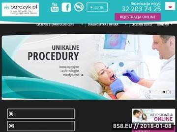 Zrzut strony Implanty Katowice - Klinika Implantologii i Stomatologii Estetycznej Borczyk