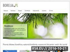 Miniaturka domeny borelia.pl