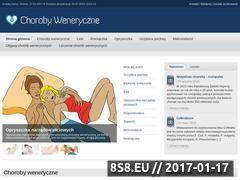 Miniaturka Choroby weneryczne (choroby-weneryczne.com)