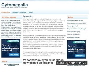 Zrzut strony Cytomegalia - objawy