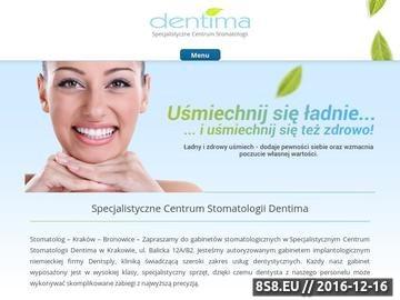 Zrzut strony Wybielanie zębów