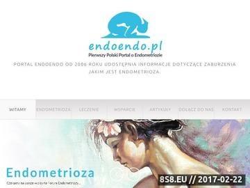 Zrzut strony Endometrioza