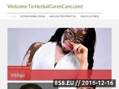 Thumbnail of Eczema, vitiligo, hair loss - Eczema Cream Website