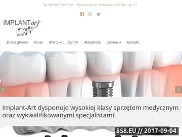Zrzut strony Implant-Art - dobry stomatolog Warszawa