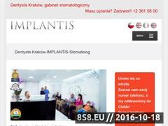 Miniaturka domeny implantis.com.pl