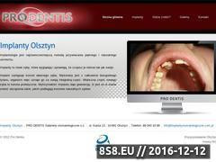 Miniaturka domeny www.implantystomatologiczne.com.pl