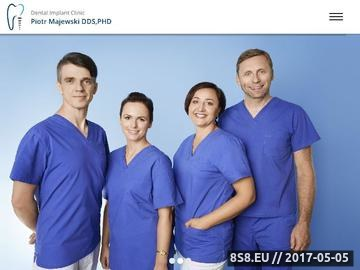 Zrzut strony Dentysta Kraków - Implantologia