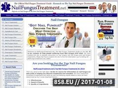 Toenail Fungus Treatment Website