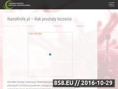 Miniaturka domeny www.nanoknife.pl