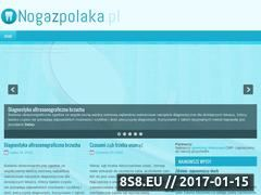 Miniaturka domeny nogazpolaka.pl