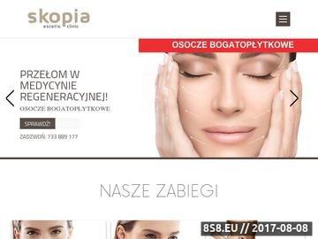 Zrzut strony Przyjdź na zabiegi odmładzające do Skopia Estetic Clinic Kraków