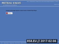 Thumbnail of Mitral Valve Surgery Website