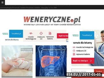 Zrzut strony Choroby Weneryczne