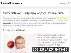 Miniaturka bialkowa.pl (Kompendium wiedzy na temat skazy białkowej)