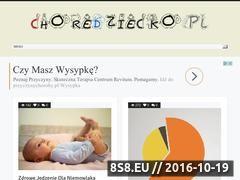 Miniaturka domeny choredziecko.pl