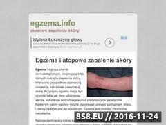 Miniaturka domeny egzema.info