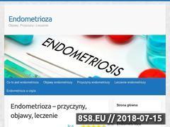 Miniaturka endometriosis.net.pl (Wszystkie informacje o endometriozie)