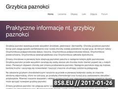Miniaturka domeny grzybicapaznokci.pl