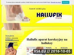 Miniaturka www.halufix.pl (Szyny na haluksy)