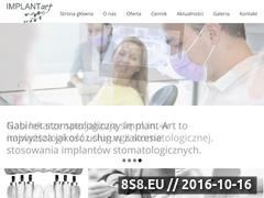 Miniaturka domeny implant-art.com.pl