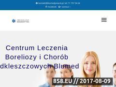 Miniaturka leczenie-boreliozy.pl (Centrum Leczenia Boreliozy - Blumed)