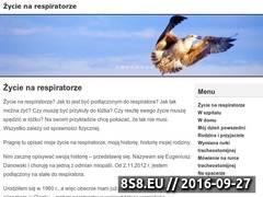 Miniaturka www.narespiratorze.pl (Opis mego życia na respiratorze)