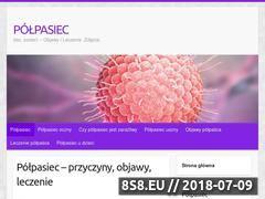 Miniaturka polpasiec.edu.pl (Informacje na temat półpaśca)