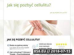 Miniaturka redukcjacellulitu.pl (Cellulit? pozbądź się go.)