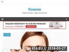 Miniaturka domeny rosacea.net.pl