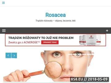 Zrzut strony Rosacea - trądzik różowaty