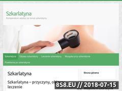 Miniaturka szkarlatyna.info.pl (Serwis o szkarlatynie)